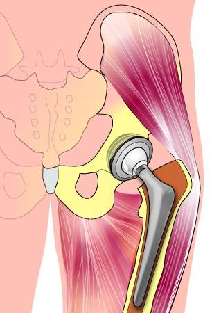 החלפת מפרק ירך אנטומיה